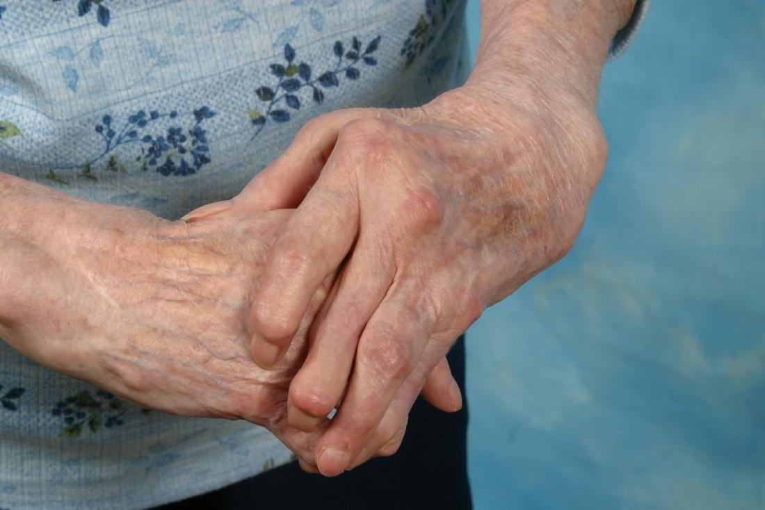 cách chữa viêm khớp ngón tay